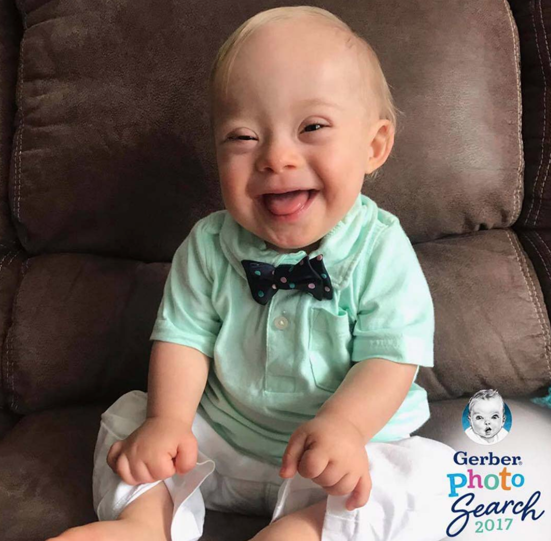 New Gerber Baby With Down Syndrome Is Controversial — But